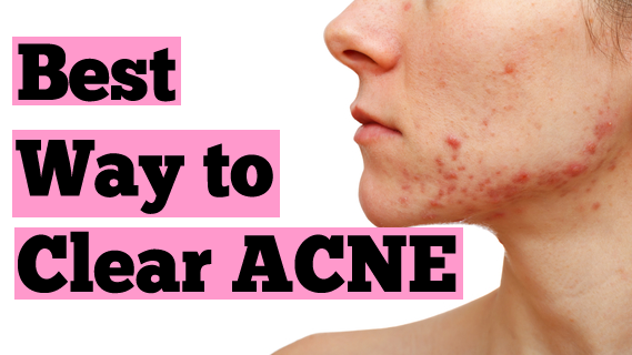 how-to-clear-inflamed-non-inflamed-acne-best-acne-treatment